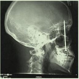καρφί στο κεφάλι σε εργάτη που δεν τον πονούσε