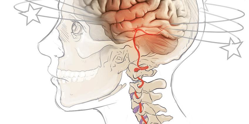Αυχενικό σύνδρομο και ζαλάδες ή ίλιγγος - Φυσικοθεραπεία..