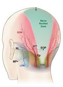 αυχενικό σύνδρομο και πονοκέφαλος